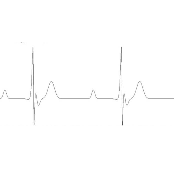 Удаленный мониторинг пациента: я знаю, что вы знаете, что я знаю